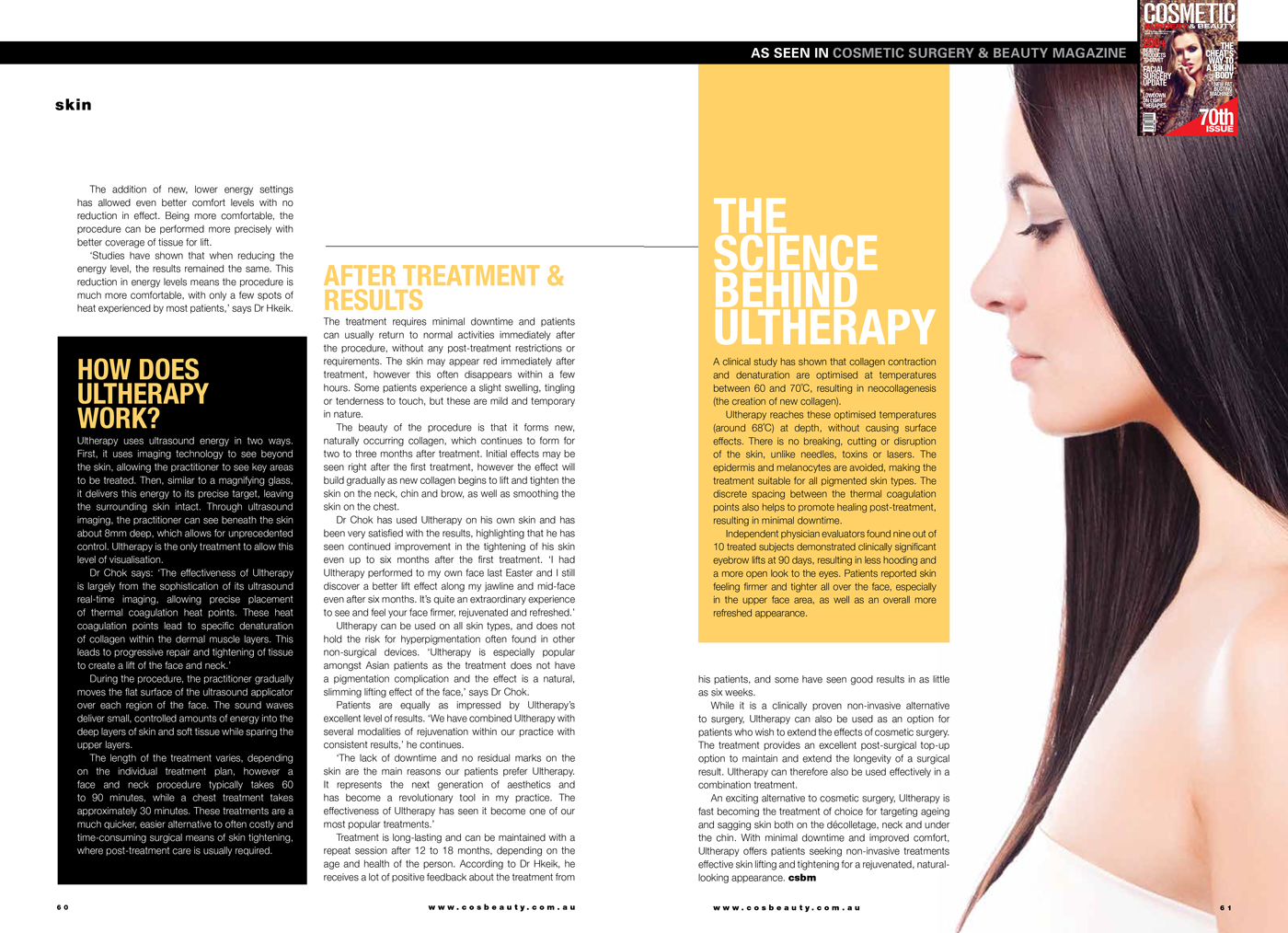 Ultherapy-2